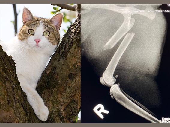 Röntgenbild das eine Knochenfraktur aufzeigt