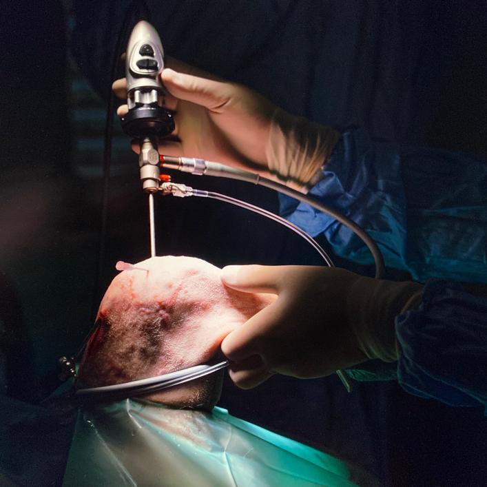 Der Chirurg hält das Arthroskopie Werkzeug in der Hand