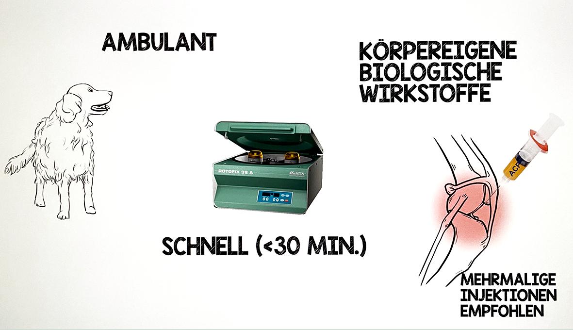 ACP Therapie Verfahren wird zeichnerisch dargestellt